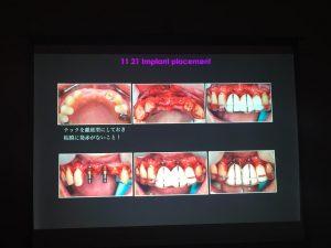 img_5295